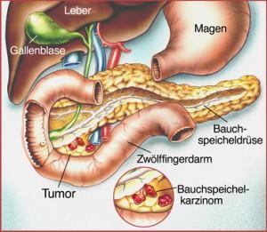 Bauchspeicheldrüsenkrebs gehört zu den aggressiven bösartigen Tumoren und miss vom Gastroenterologen operativ entfernt werden
