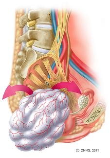 Bild 2: Intraoperatives Vorgehen: Dargestellt ist das aus dem Rückenmark hervorgehende Nervengeflecht zur Versorgung der Beckenorgane und unteren Extremitäten. Parallel dazu verlaufen die großen Blutgefäße. Der Tumor wurde minutiös unter Schonung der empfindlichen Nervenfasern freipräpariert und aus dem kleinen Becken herausgelöst.