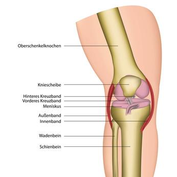 Bänderriss am Knie