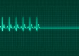 Herz- oder Kammerflimmern kann ohne sofortige Behandlung zum Tod führen