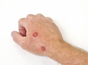 Mit Kryotherapie behandelte Hand