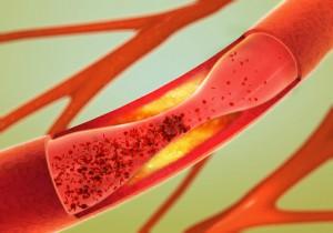 Bei der Arterienverkalkung stellt der Kardiologe verengte und steife Gefäße fest