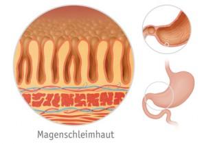 Magenentzündung, Gastritis (akute Form)
