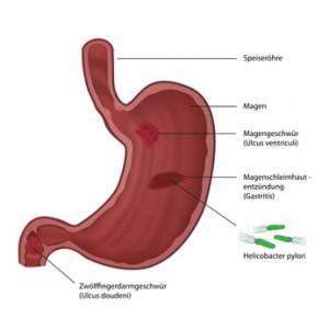 Ein Magen- oder Zwölffingerdarmgeschwür gehören zu den häufigsten Erkrankungen des Verdauungstracktes