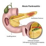 Ein Verschluss durch Gallensteine kann zu akuter Pankreatitis führen
