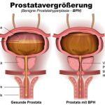 Prostatavergrerung, Prostatahyperplasie, BPH, anatomie