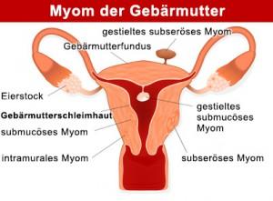Myom der Gebärmutter, Uterusmyom